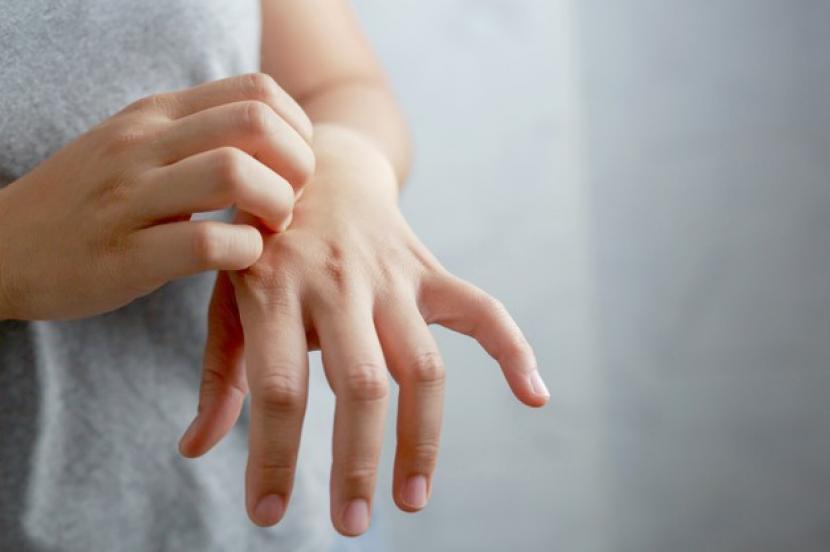 Studi Sebut Vaksin Dosis 2 Aman Diberi Meski Sempat Alergi